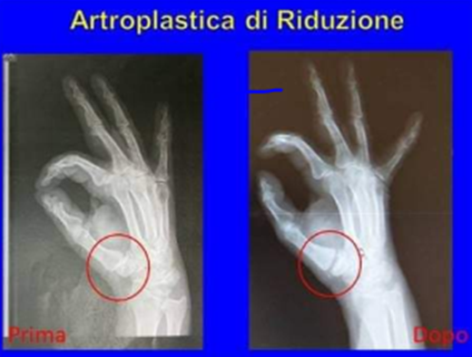 artroplastica